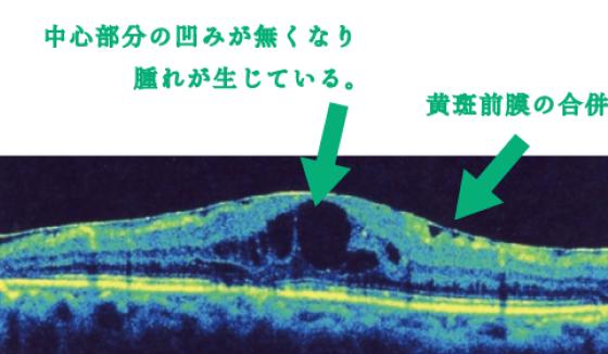 糖尿病黄斑症の網膜層写真