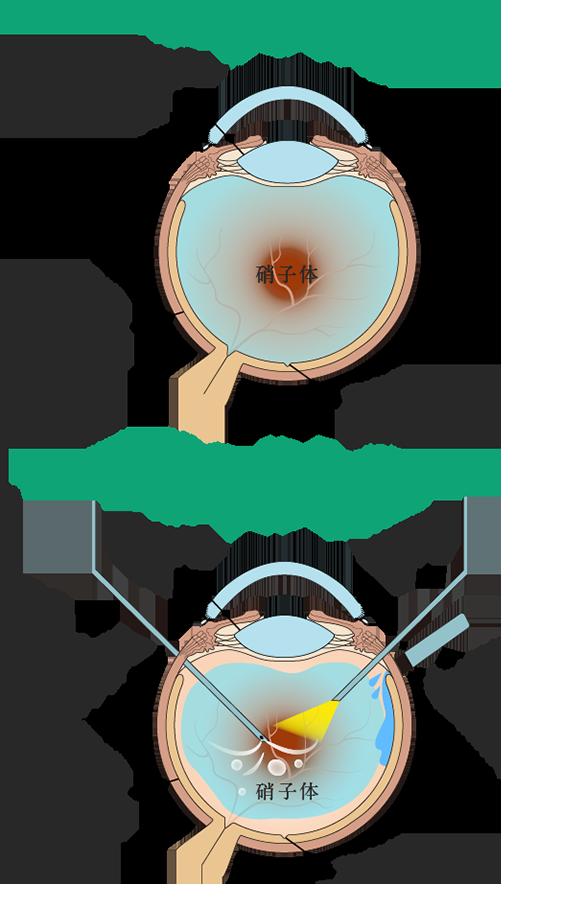硝子体手術の概要