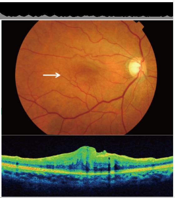 硝子体手術後の黄斑前膜症例