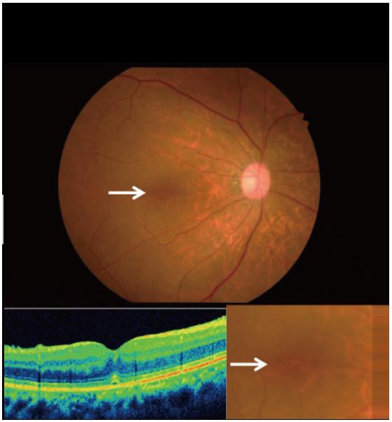 硝子体手術前の黄斑円孔症例
