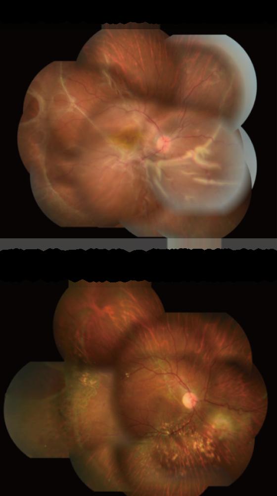 硝子体手術前後の網膜剥離症例