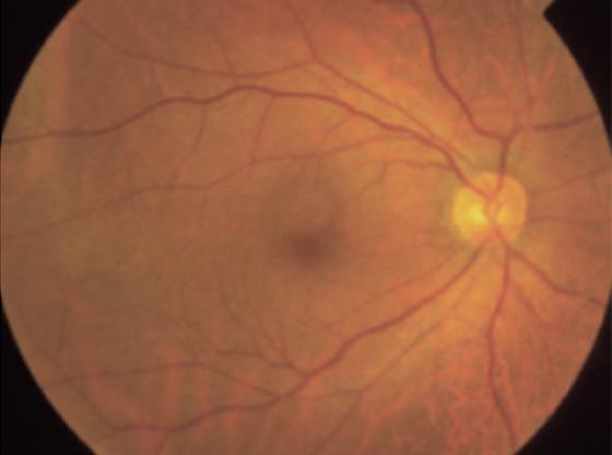正常な眼底写真(網膜の写真)