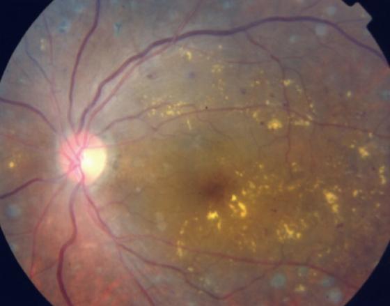 糖尿病黄斑症の眼底写真