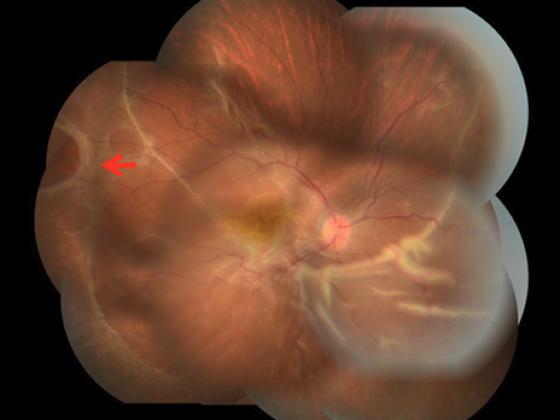 網膜中心静脈閉塞症